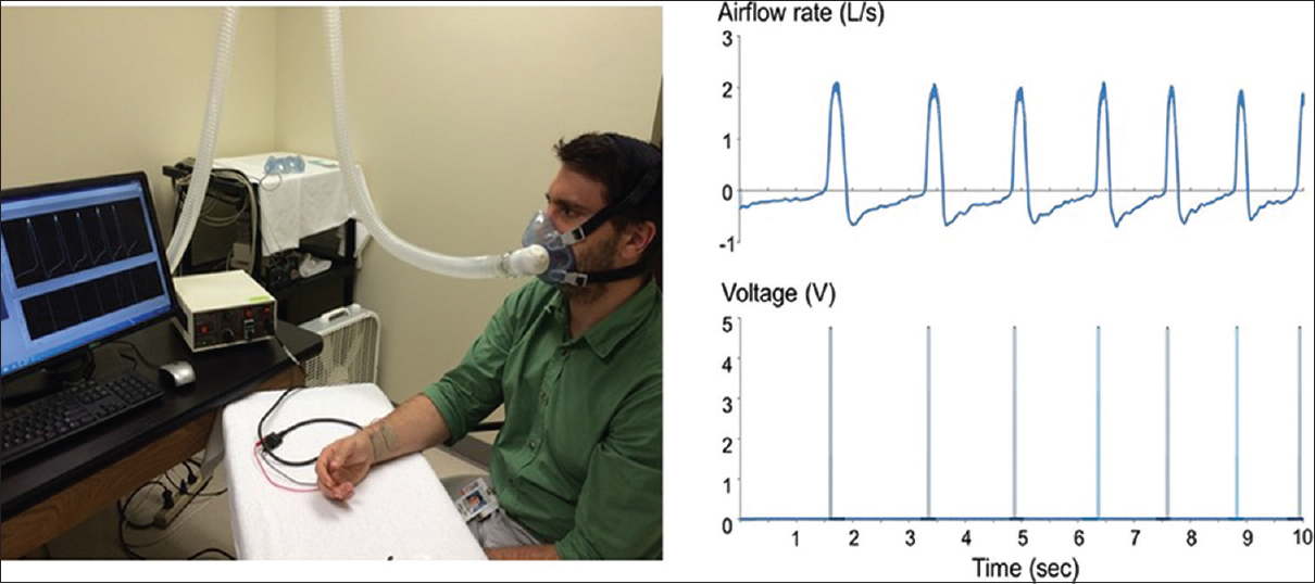 Figure 1: Breathing-controlled electrical stimulation and experimental setting. This figure depicts the experimental setting with the breathing-controlled electrical stimulation treatment. A subject breathes through a facemask (left panel) to collect breathing signals. When the airflow rate (right upper panel) reaches a predetermined threshold, the central controller sends a command to the electrical stimulator, which provides electric stimulation through the surface electrode to the median nerve transcutaneously (right lower panel)